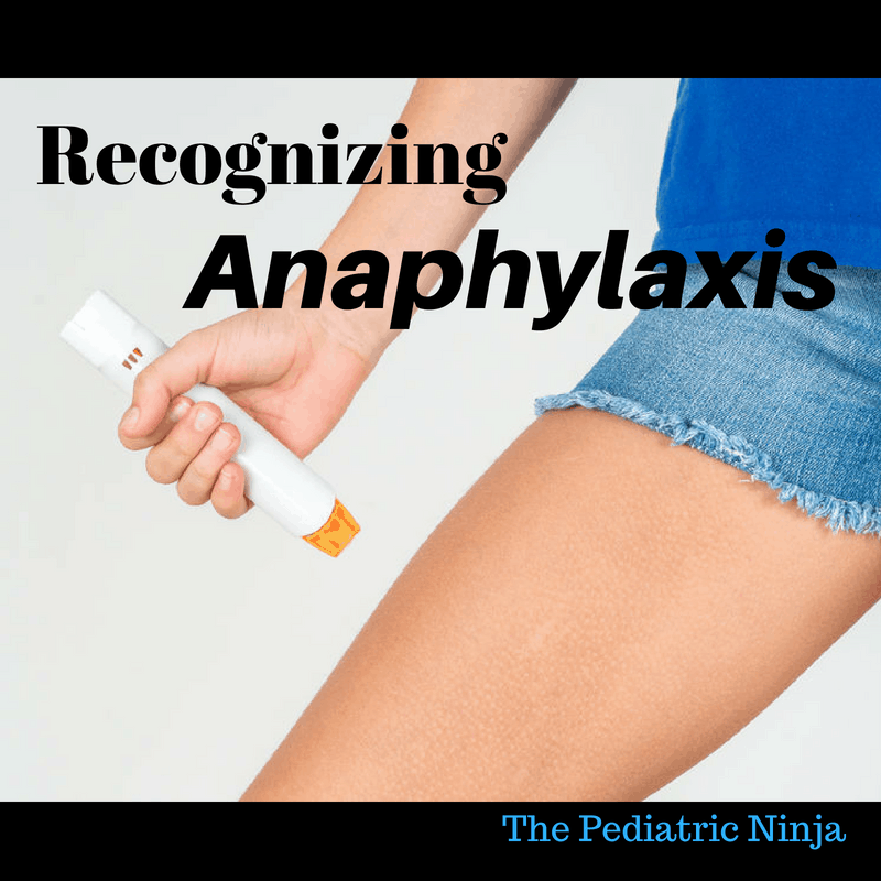 anaphylaxis and epi-pen